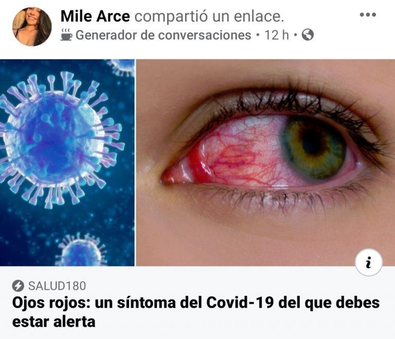 Los ojos rojos son un síntoma poco frecuente en pacientes con coronavirus