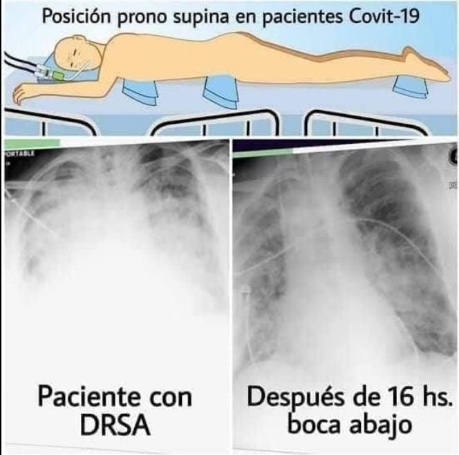 VERDADERO: Acostarse boca abajo ayuda a respirar mejor a pacientes con COVID-19