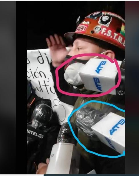 Imagen de micrófonos de ATB se difunde como si portaran COVID-19. La televisora califica el comentario como una barbaridad