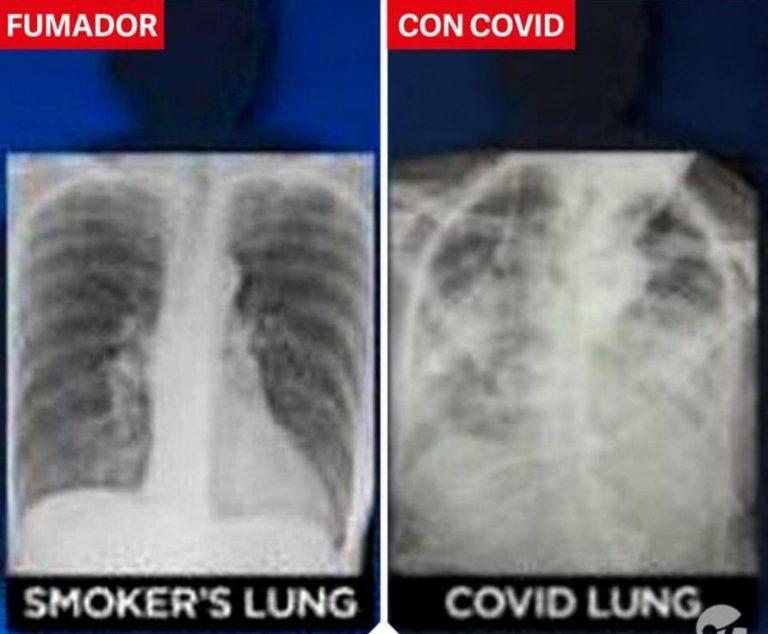 No siempre hay daño en los pulmones de pacientes de Covid-19, pero puede ser peor que el de un fumador crónico