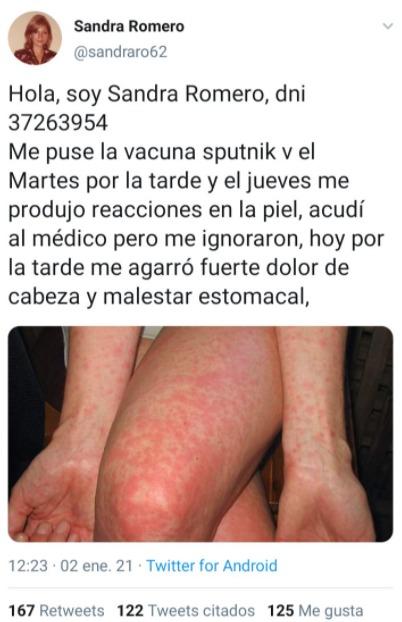 """No es verdad que la usuaria """"Sandra Romero"""" reportó reacciones en la piel tras la vacuna Sputnik-V"""
